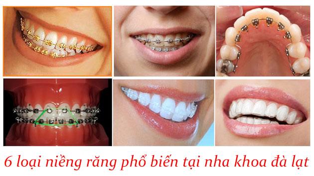 Các loại niềng răng phổ biến tại nha khoa đà lạt