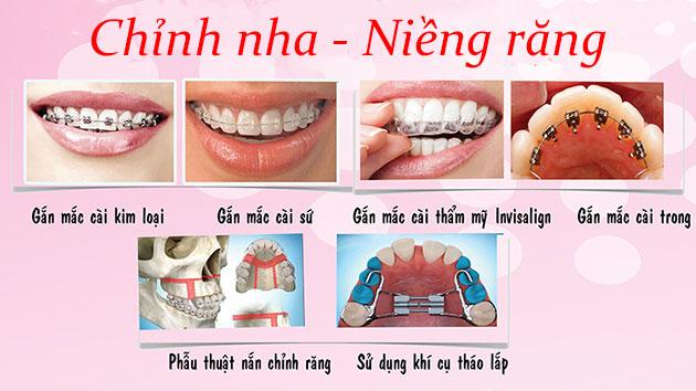 Chỉnh nha - Niềng răng