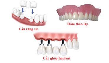 Làm răng giả