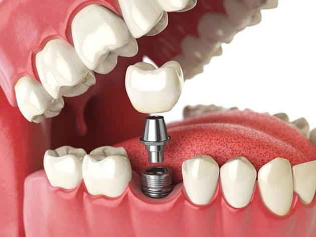 Trồng răng dùng trụ là Implant