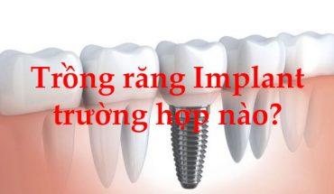 Trồng răng Implant cho trường hợp nào