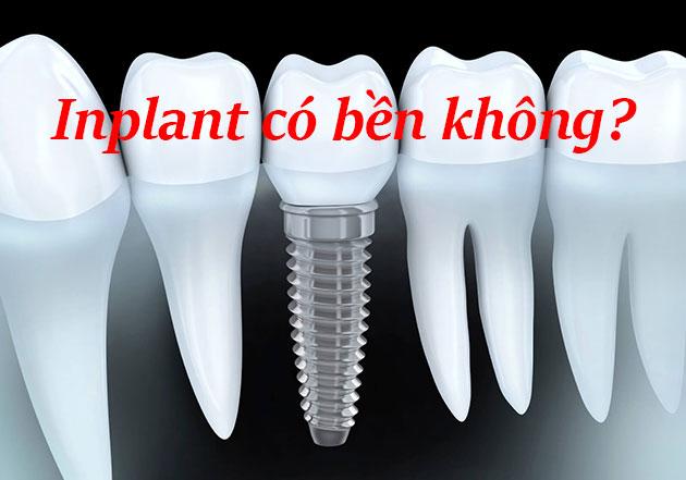 Implant có bền không?