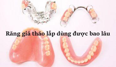 Răng giả tháo lắp dùng được bao lâu