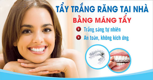 Tẩy trắng răng tại nhà bằng máng tẩy