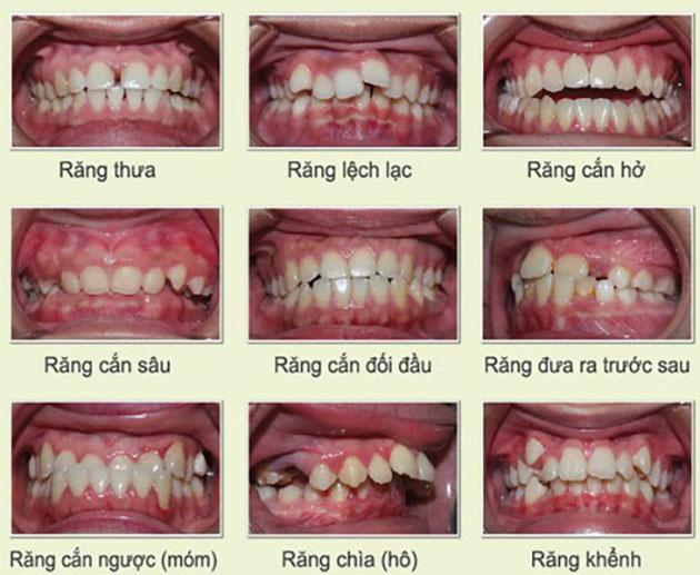 Trường hợp nên niềng răng