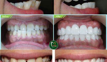 Bọc răng sứ cho răng hô, răng móm, răng thưa