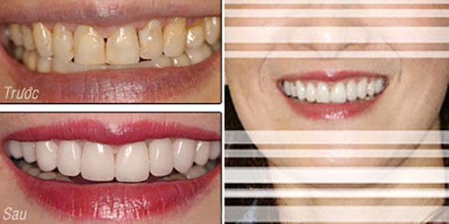 Bọc răng sứ cho răng nhiễm fluor