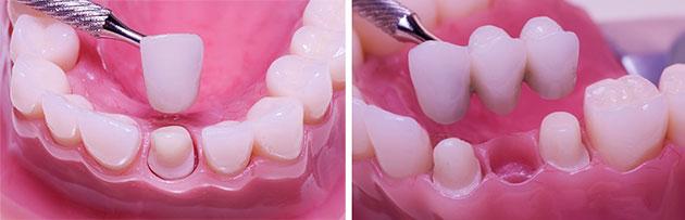 Bọc răng sứ và cầu răng sứ