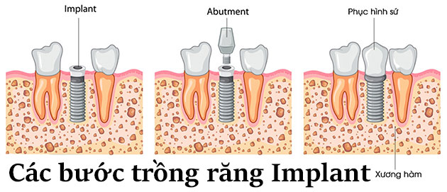Các bước trồng răng Implant
