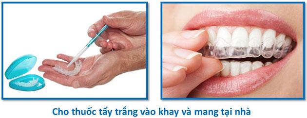 Cách tẩy trắng răng tại nhà