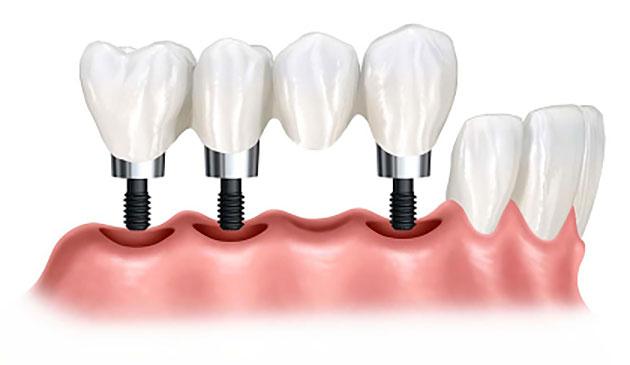 Cấy ghép implant nhiều răng