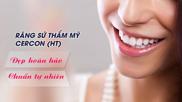 Đặc điểm răng sứ cercon