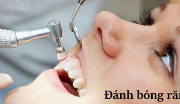 Đánh bóng răng