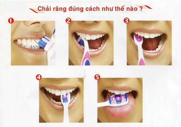 Đánh răng đúng cách như thế nào