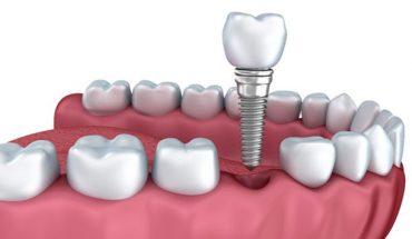 Implant giải pháp tốt nhất cho mất răng