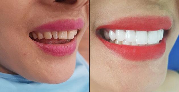 Bọc răng sứ bị hở chân răng do đâu & cách khắc phục NHANH nhất 1