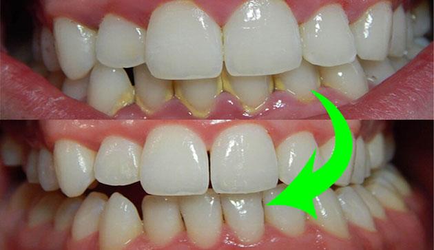 kết quả cạo vôi răng
