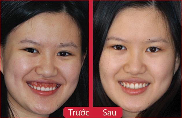 Kết quả điều trị nụ cười hở lợi