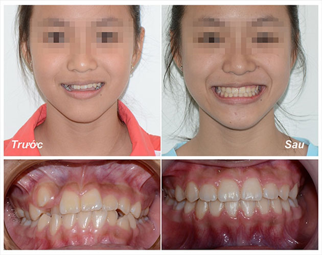 Kết quả niềng răng ở người trưởng thành