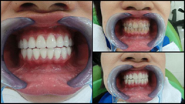 Kết quả tẩy trắng răng bị sậm màu