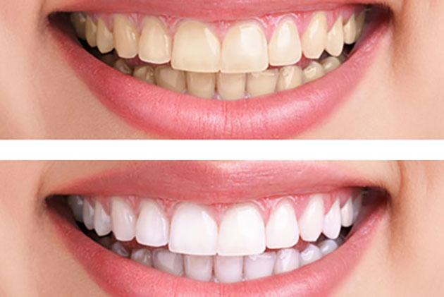 Kết quả tẩy trắng răng laser whitening