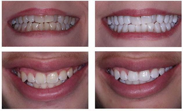 Kết quả tẩy trắng răng tại nhà