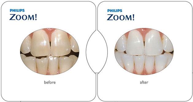 Kết quả tẩy trắng răng zoom white speed