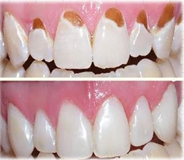 Kết quả trám răng thẩm mỹ