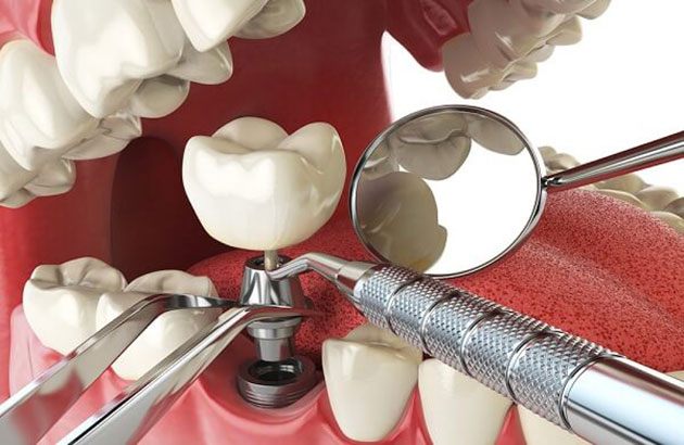 Lắp mão răng sứ lên trụ Implant