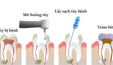 Lấy tủy răng