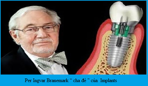 Lịch sử Implant