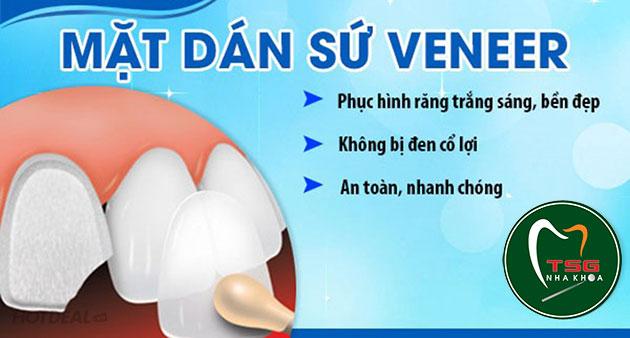Lợi ích của mặt răng sứ veneer