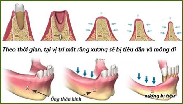 Lưu ý khi trồng răng sứ bắt cầu