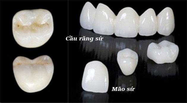 Mão răng sứ và cầu răng sứ