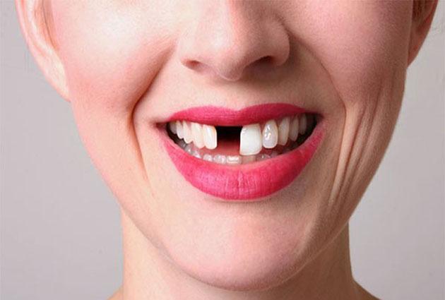 Mất 1 răng