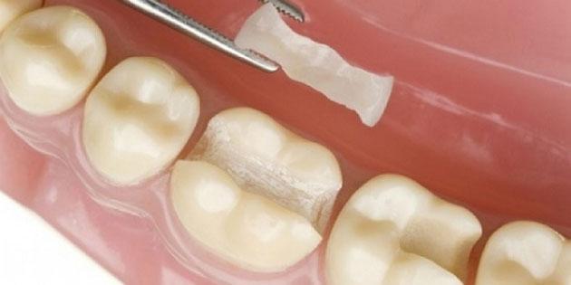Miếng trám răng
