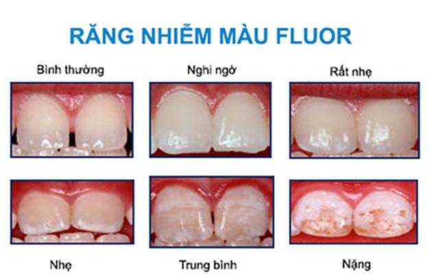Mức độ nhiễm flour của răng