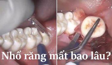 Nhổ răng mất bao lâu