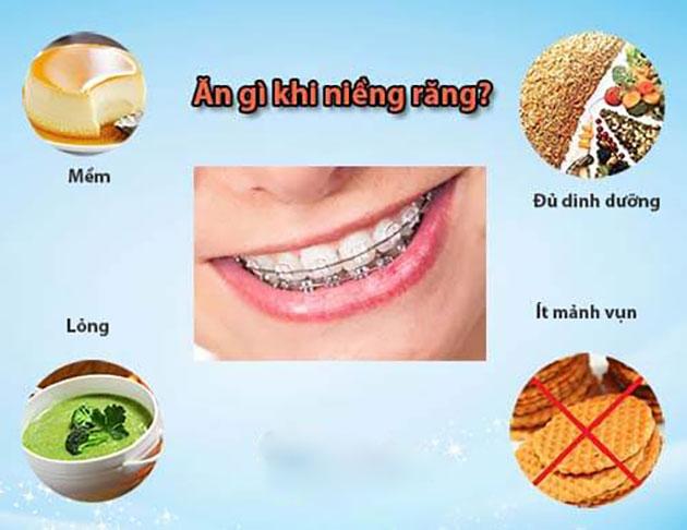 Niềng răng nên ăn gì
