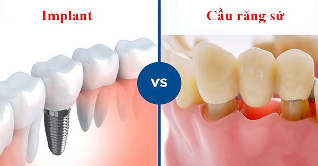 Phân biệt giữa trồng răng Implant và cầu răng sứ