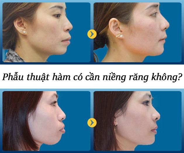 Phẫu thuật hàm có cần niềng răng không