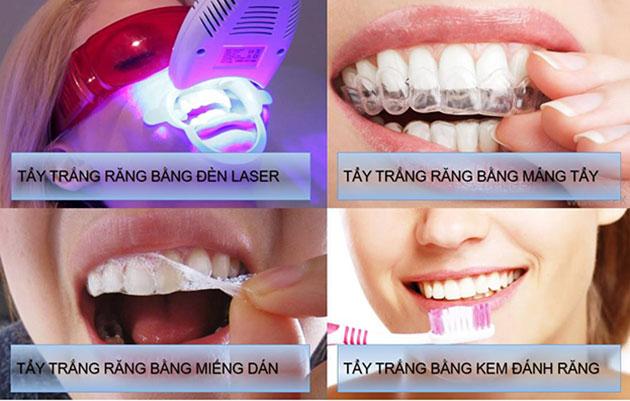 Phương pháp tẩy trắng răng