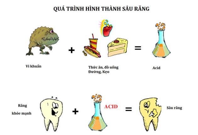 Quá trình hình thành sâu răng