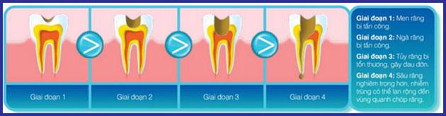 Quá trình phát triển bệnh sâu răng