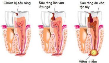 Quá trình sâu răng