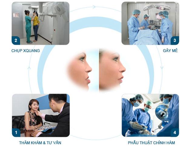 Quy trình phẫu thuật hàm