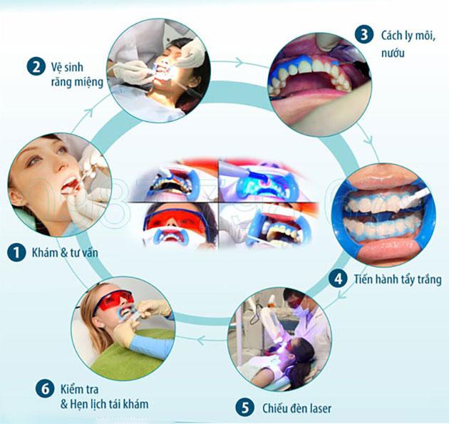 Quy trình tẩy trắng răng laser whitening