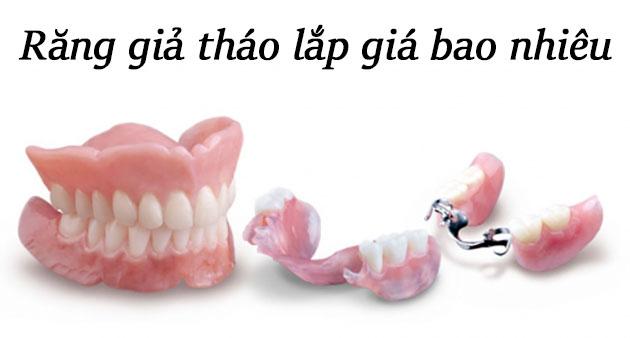 Răng giả tháo lắp giá bao nhiêu