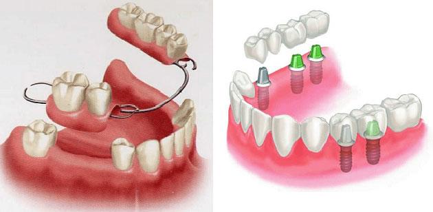 Răng giả tháo lắp với răng giả cố định