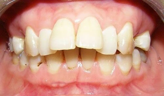 Răng hô